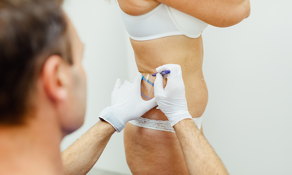 Coolsculpting in Wien